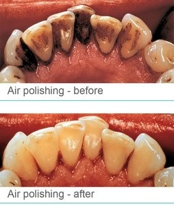 Air_polisher